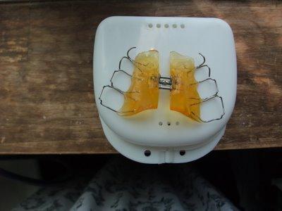 歯科矯正 9ヶ月目